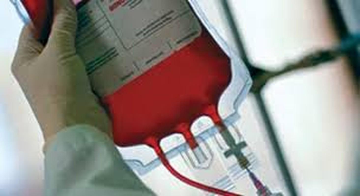 Tinh huong nao co the khien bi phoi nhiem HIV?-Hinh-7