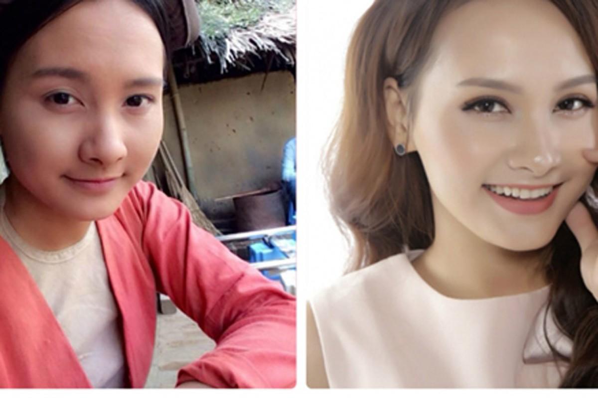 Nhan sac that cua Bao Thanh truoc khi phau thuat tham my-Hinh-4