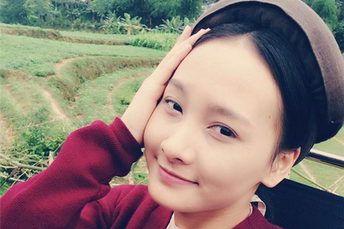 Nhan sac that cua Bao Thanh truoc khi phau thuat tham my-Hinh-6