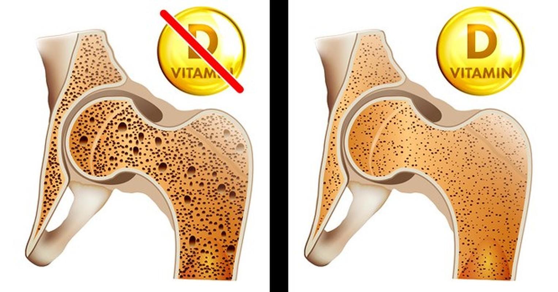 8 dau hieu cua co the nhac nho ban can bo sung ngay vitamin D-Hinh-2