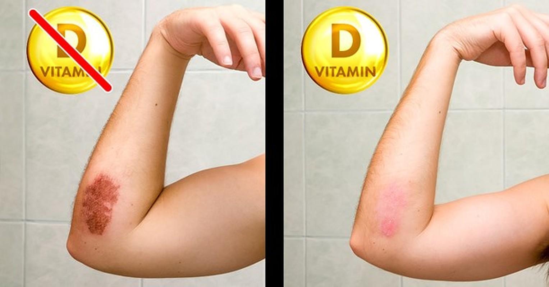 8 dau hieu cua co the nhac nho ban can bo sung ngay vitamin D-Hinh-6