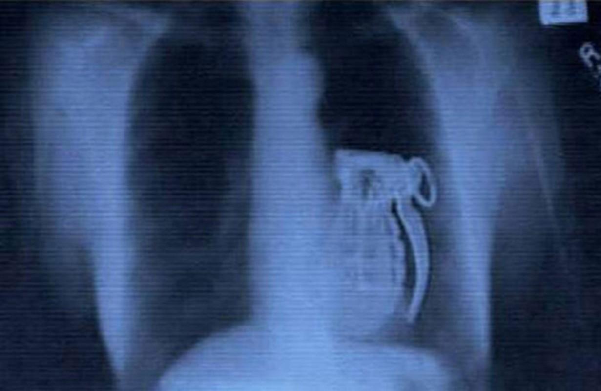 Loạt hình sọ khóc thét vè dị vạt mác kẹt trong co thẻ-Hinh-6