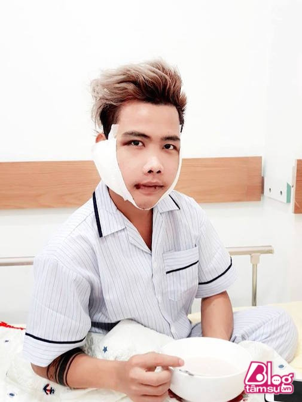 """Giat minh"" truoc nhan sac cua Tung Son sau phau thuat tham my-Hinh-3"