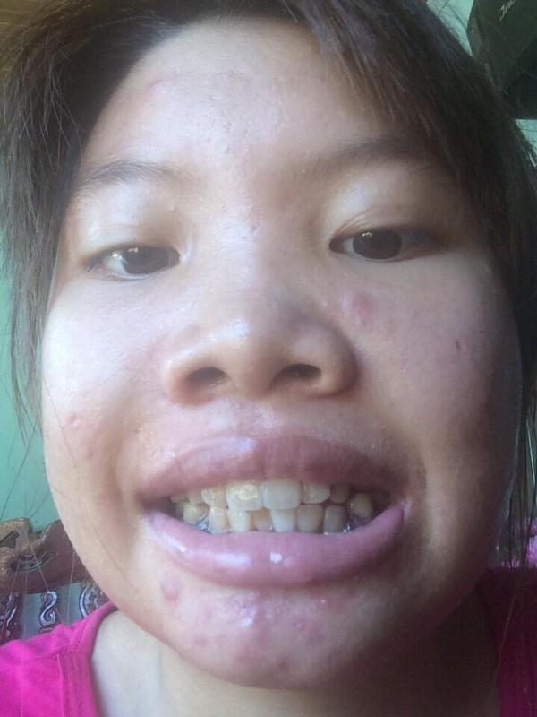 "Phuong ""Thi No"" khoe rang cu lom khom de PR rang moi-Hinh-7"