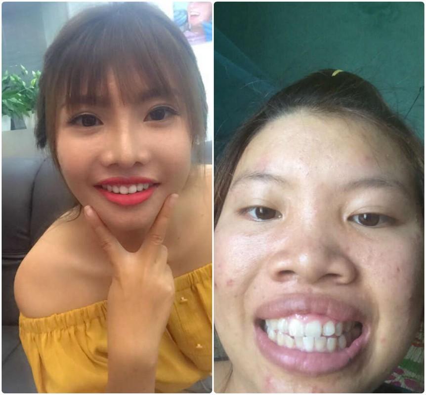 """Phuong """"Thi No"""" khoe rang cu lom khom de PR rang moi"""
