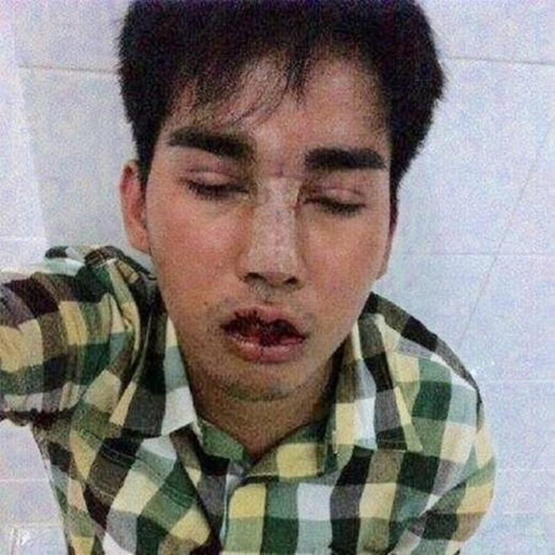 Trai que xau xi lot xac thanh hot boy dao keo-Hinh-5