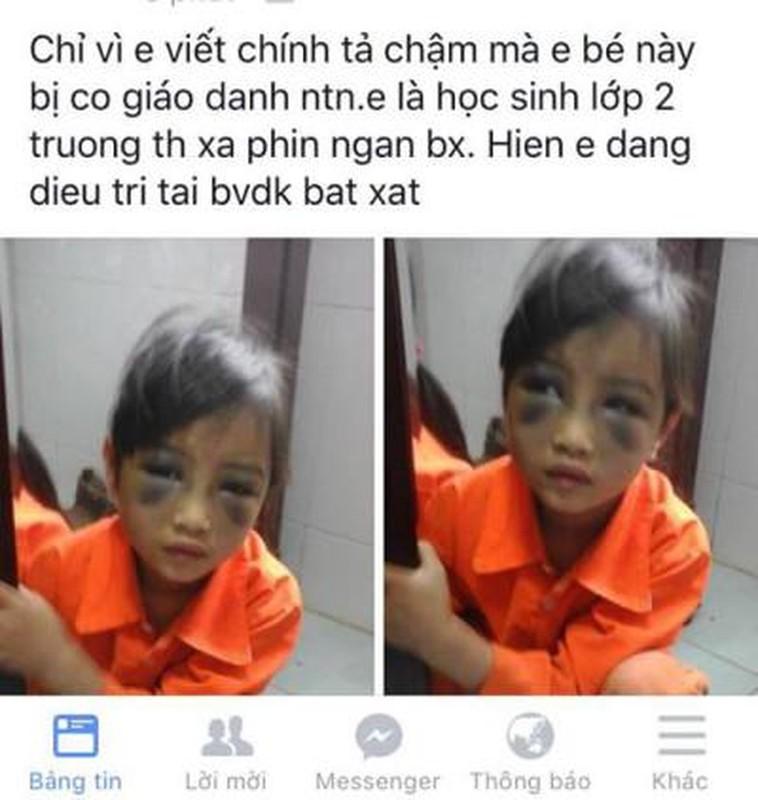 Hang loat vu bao luc hoc duong gay chan dong du luan thoi gian qua-Hinh-8