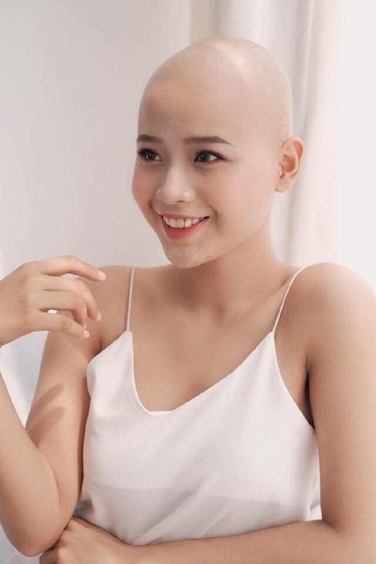 Cao dau vi benh hiem ngheo, nu sinh FTU van quyet thi nhan sac-Hinh-2