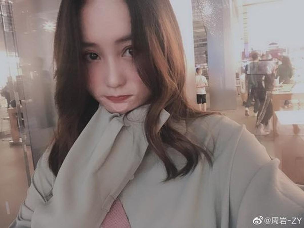 Tung bi ke dien tinh thieu song, nguoi mau tre hoi sinh day no luc-Hinh-9