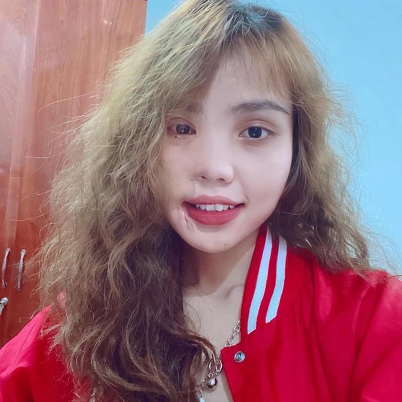 Co gai Da Nang bi chong sap cuoi tat axit be lai lam mau anh-Hinh-5