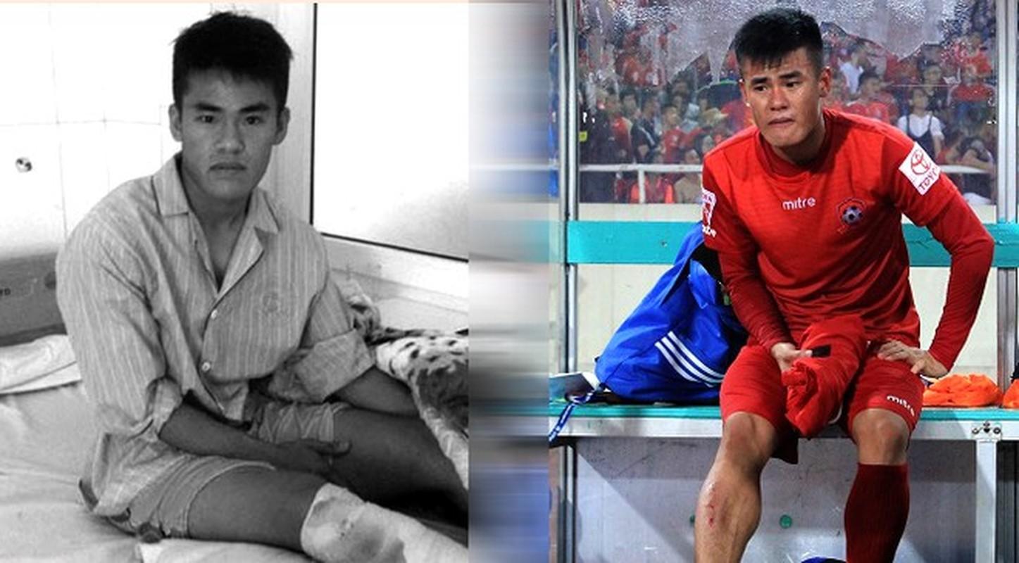 Truoc Do Hung Dung, V-League tung chung kien bao vu gay chan?-Hinh-9