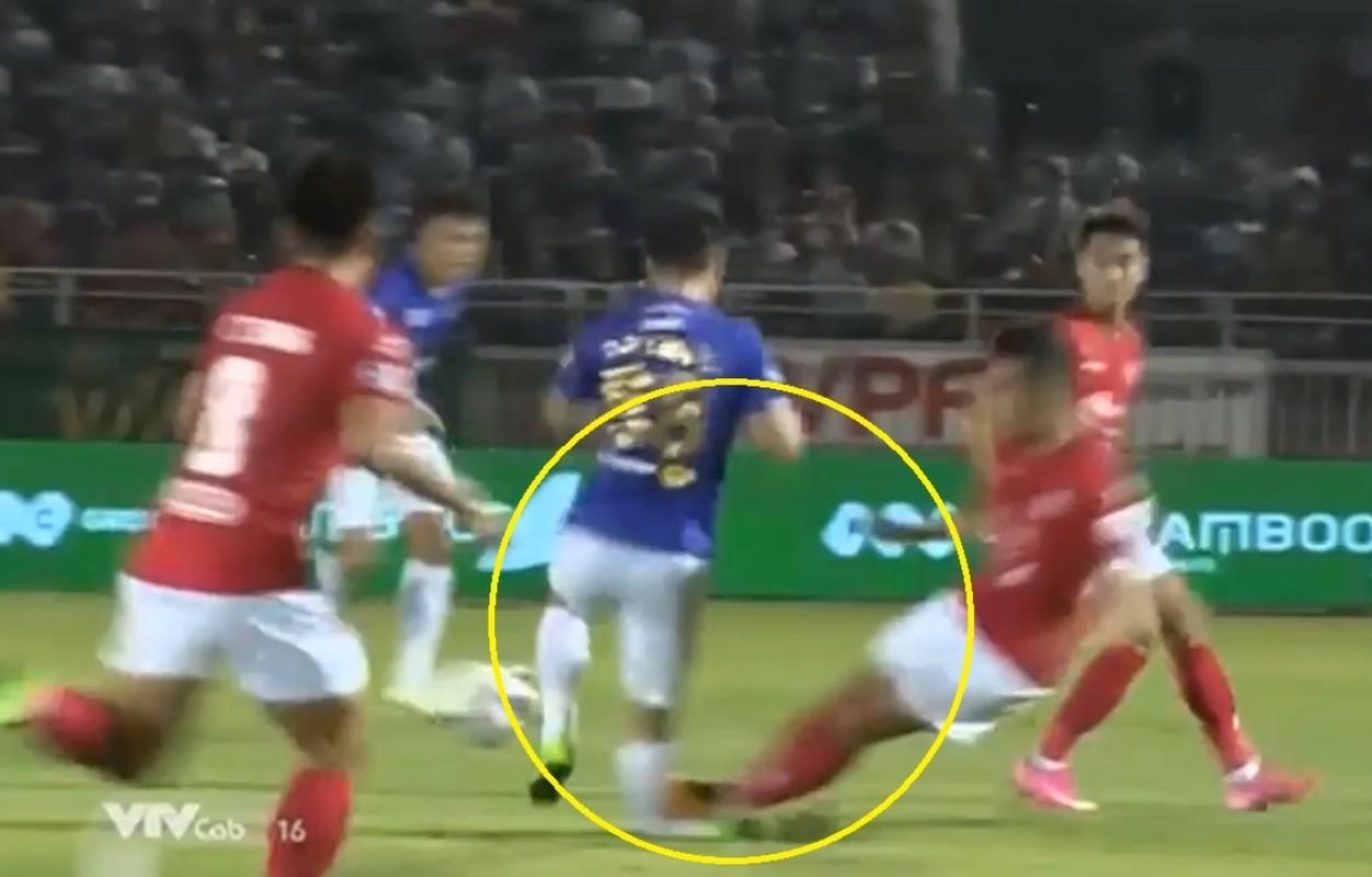 Truoc Do Hung Dung, V-League tung chung kien bao vu gay chan?