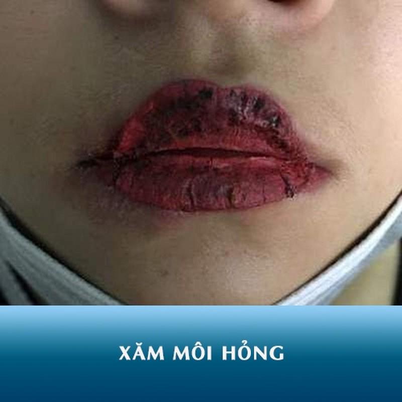 Hoi chi em phun moi collagen, netizen nhin ma chet khiep-Hinh-12