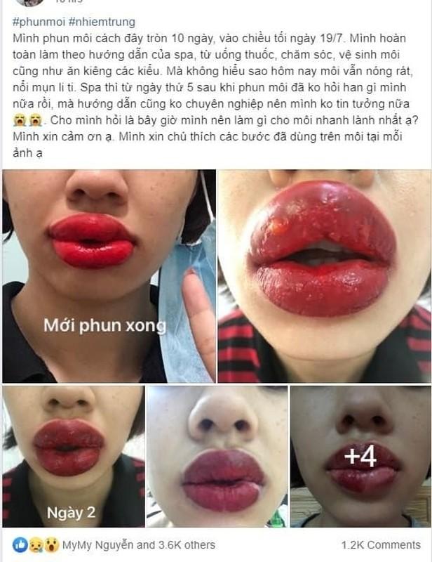 Hoi chi em phun moi collagen, netizen nhin ma chet khiep-Hinh-3