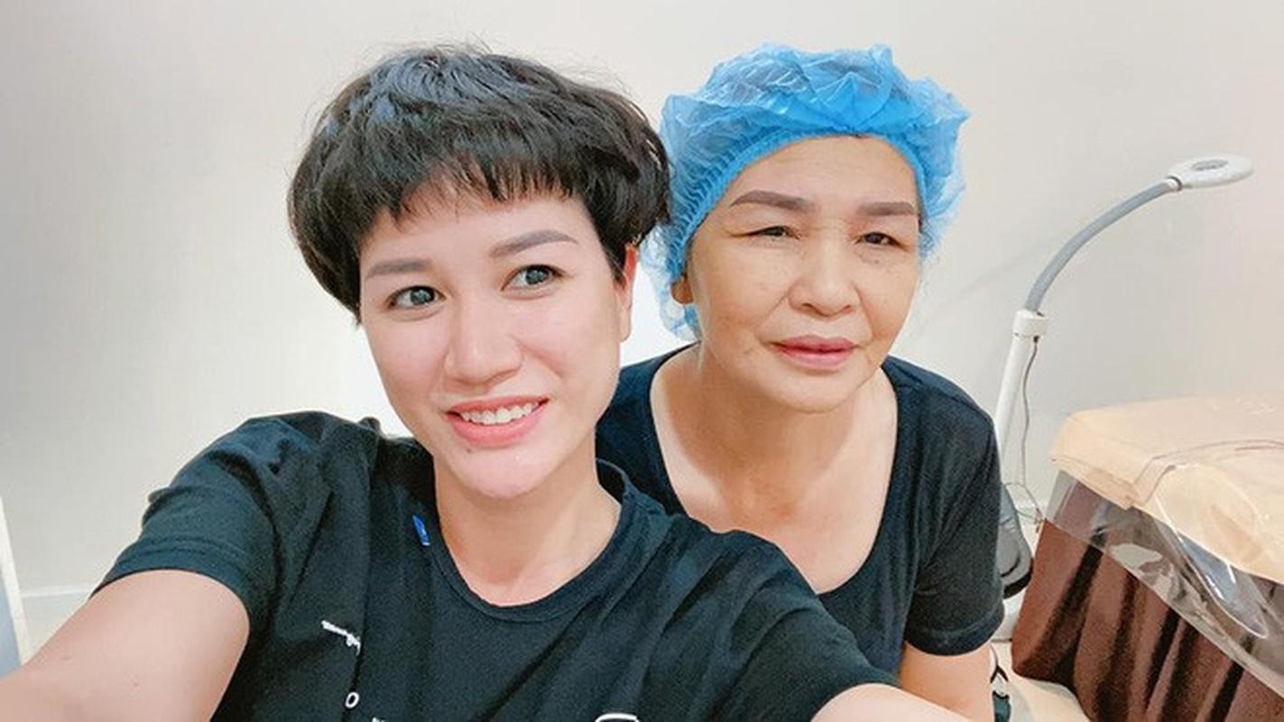 Soi khoi tai san do so cua nguoi mau Trang Tran-Hinh-8