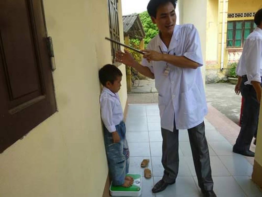 Nguyen nhan tre em Viet Nam thap coi top 20 the gioi-Hinh-4