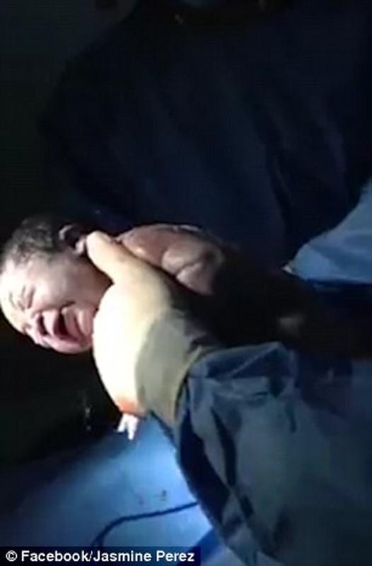 Can canh thai nhi sinh ra trong boc oi hiem gap-Hinh-5