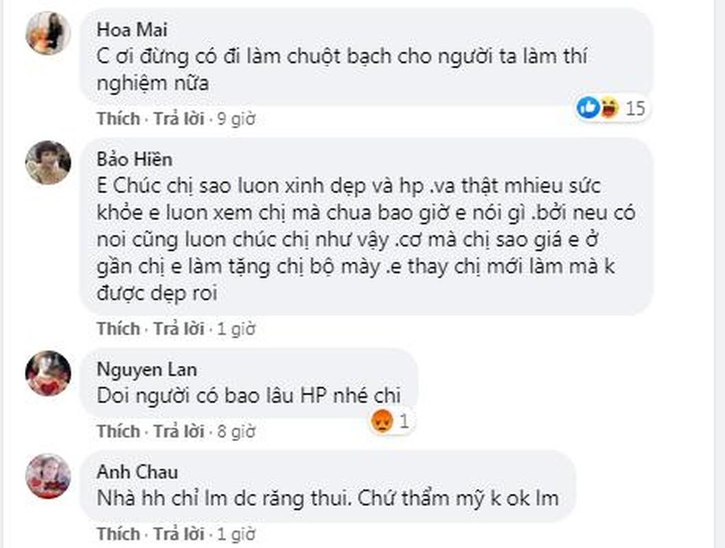 """Dan mang giat minh voi vet tich tham my cua """"co dau 62 tuoi""""-Hinh-12"""