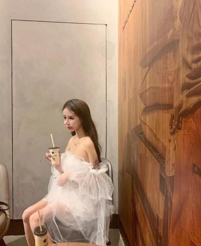 100 lan phau thuat tham my, hot girl xu Trung nhin phat so-Hinh-10