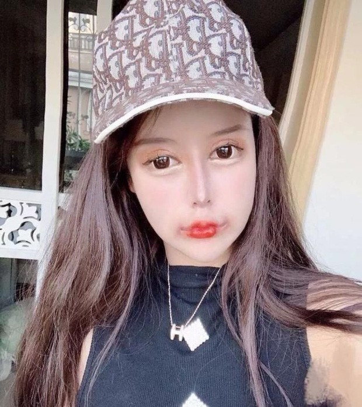 100 lan phau thuat tham my, hot girl xu Trung nhin phat so-Hinh-11