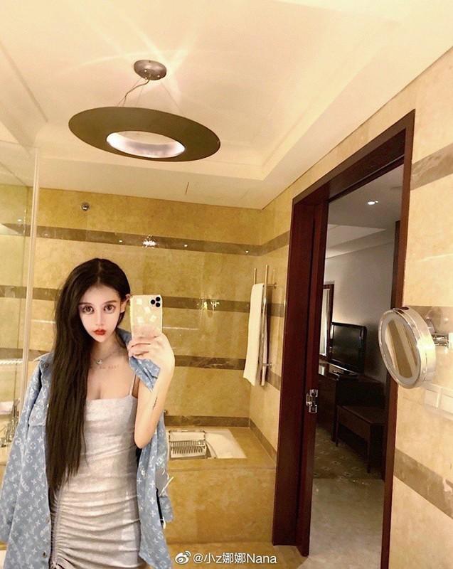100 lan phau thuat tham my, hot girl xu Trung nhin phat so-Hinh-13