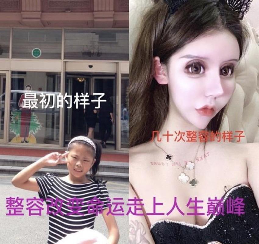 100 lan phau thuat tham my, hot girl xu Trung nhin phat so-Hinh-2