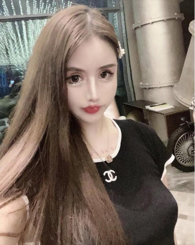 100 lan phau thuat tham my, hot girl xu Trung nhin phat so-Hinh-3