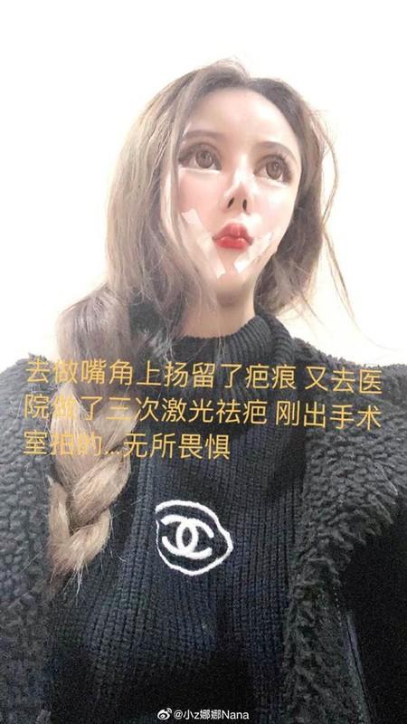 100 lan phau thuat tham my, hot girl xu Trung nhin phat so-Hinh-4