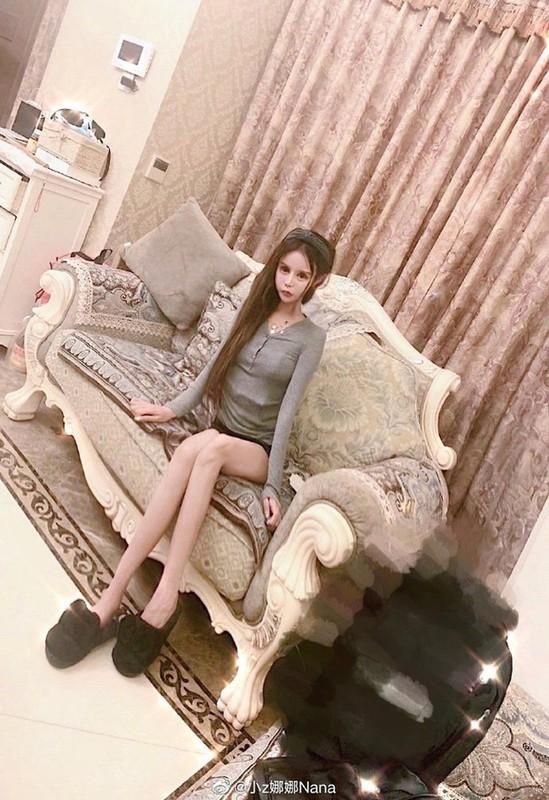 100 lan phau thuat tham my, hot girl xu Trung nhin phat so-Hinh-5