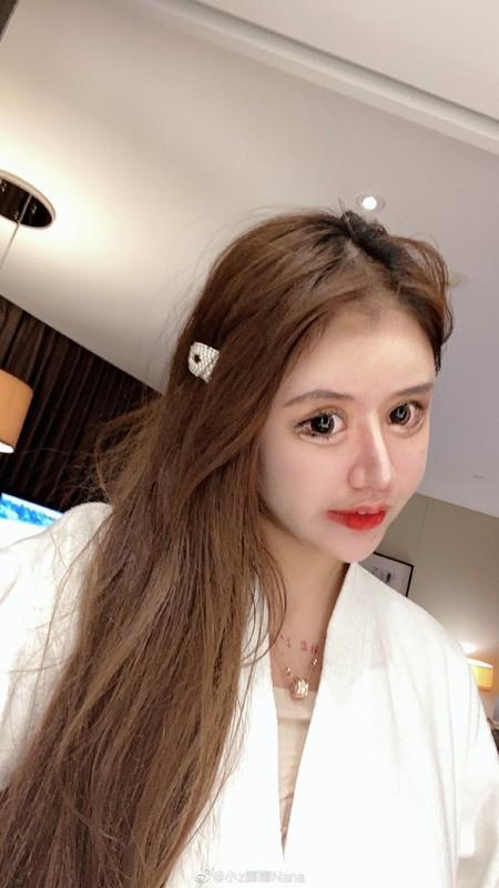 100 lan phau thuat tham my, hot girl xu Trung nhin phat so-Hinh-9