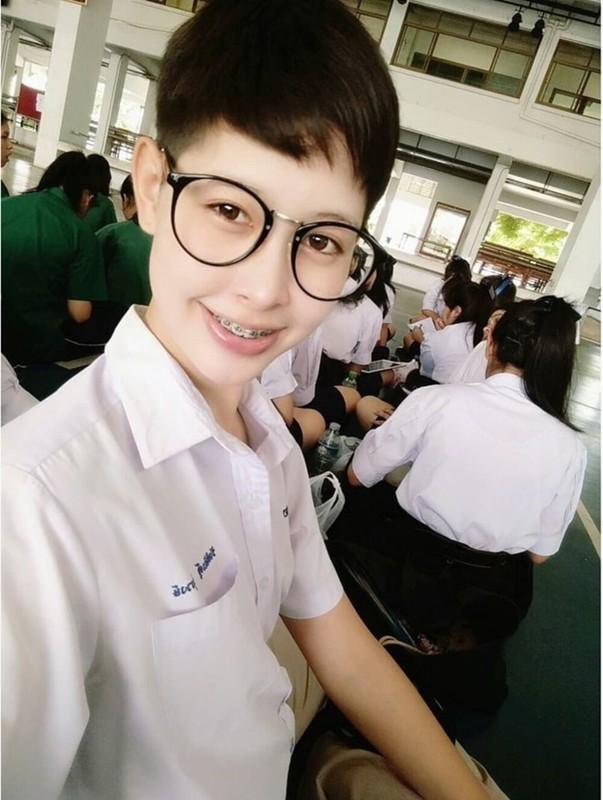 Soi nhan sac truoc phau thuat cua Tan Hoa hau Chuyen gioi Thai-Hinh-4