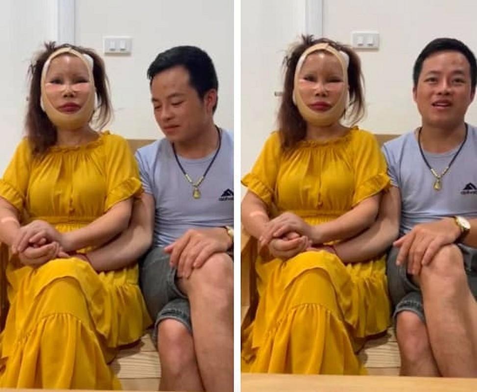 "Guong mat co dau 62 tuoi ra sao sau nua nam ""dao keo""?-Hinh-3"