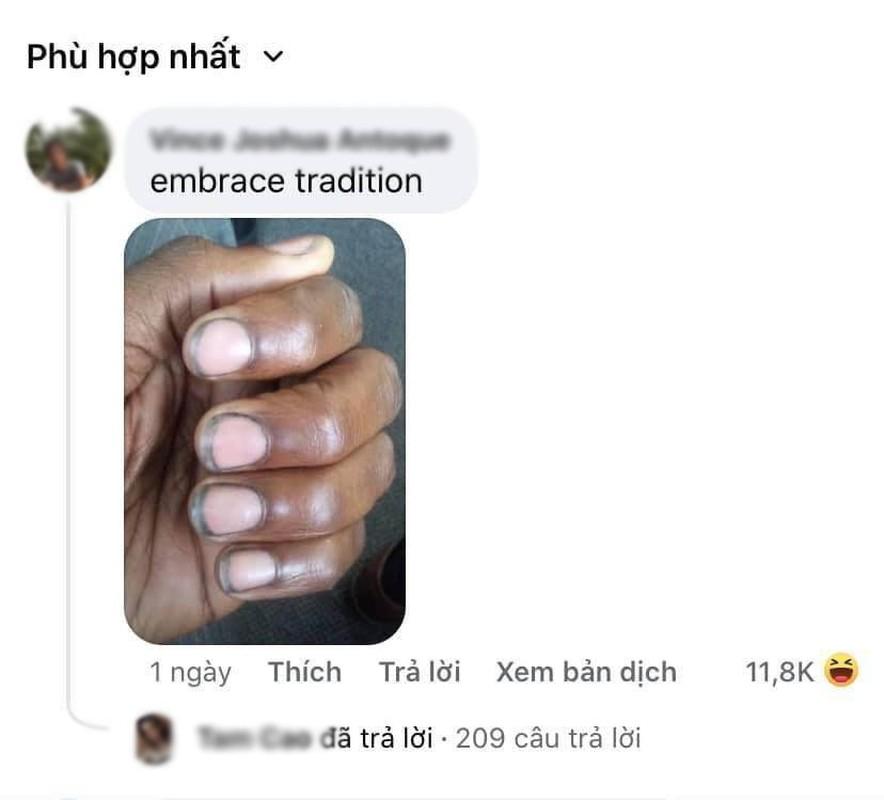 """Xuat hien bo nail dung chuan """"chan lam tay bun"""" khien dan tinh so-Hinh-2"""
