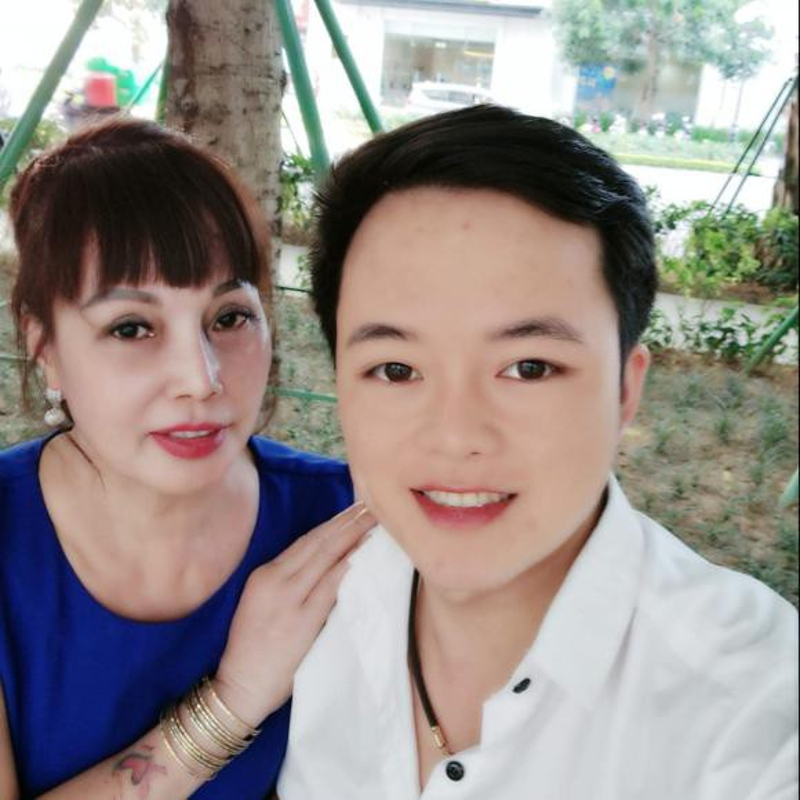 """Co dau 62 tuoi"" khoe guong mat moi khac la sau tham my-Hinh-10"