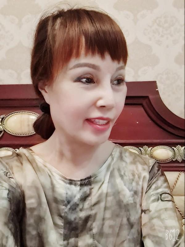 """Co dau 62 tuoi"" khoe guong mat moi khac la sau tham my-Hinh-11"
