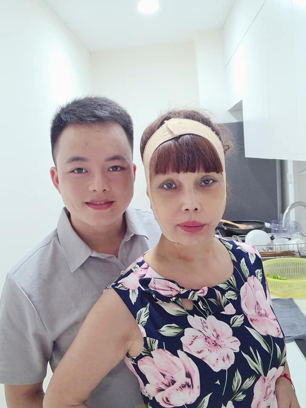 """Co dau 62 tuoi"" khoe guong mat moi khac la sau tham my-Hinh-3"