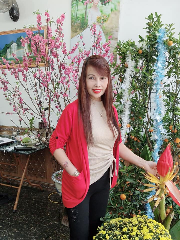 """Co dau 62 tuoi"" khoe guong mat moi khac la sau tham my-Hinh-4"