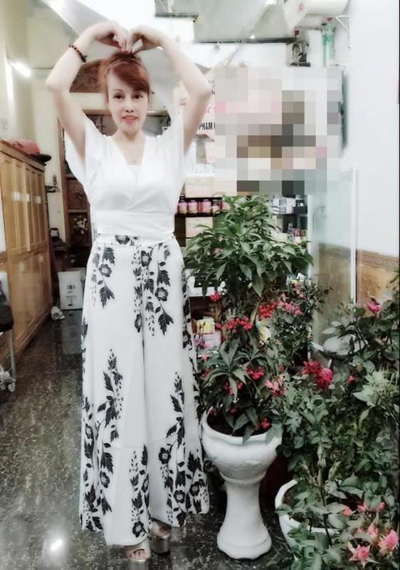 """Co dau 62 tuoi"" khoe guong mat moi khac la sau tham my-Hinh-9"