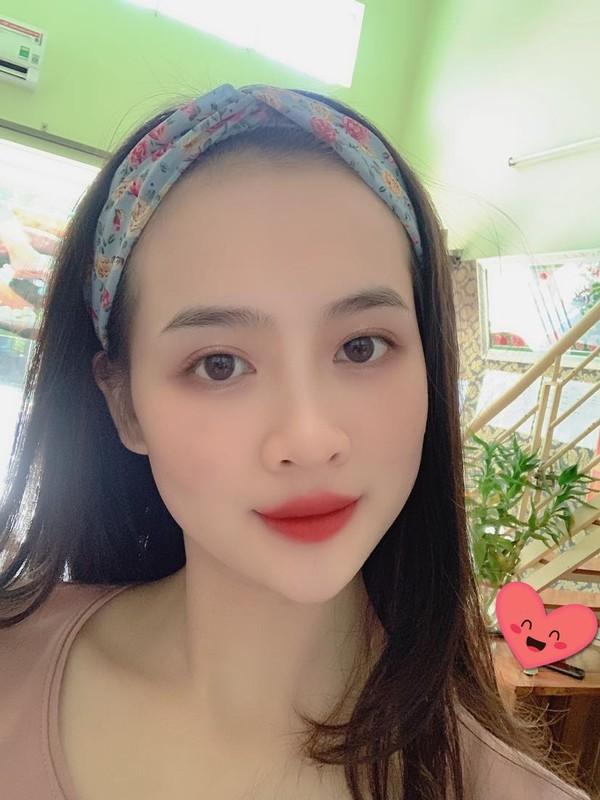 Lo danh tinh nu tan binh Yen Bai gay thuong nho qua dep-Hinh-9