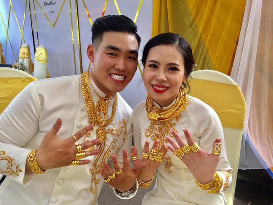 """""""Loa mat"""" voi cua hoi mon """"sieu khung"""" cua co dau An Giang-Hinh-8"""