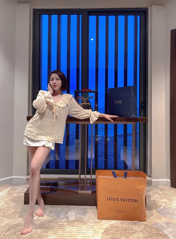De lo canh tay la, hot girl Tram Anh khien netizen don doan xon xao-Hinh-11