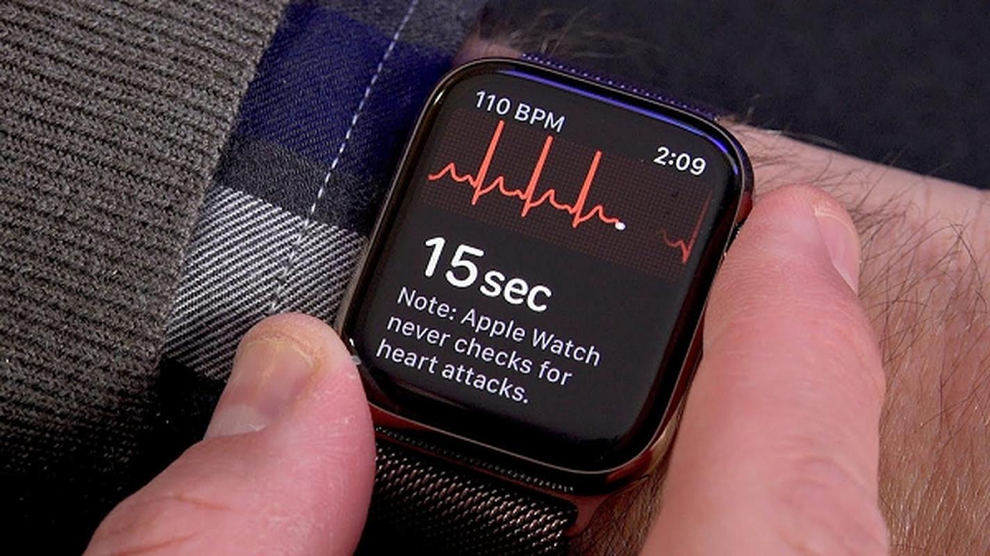 Kich hoat ngay tinh nang nay cua Apple Watch de chong dot quy-Hinh-7