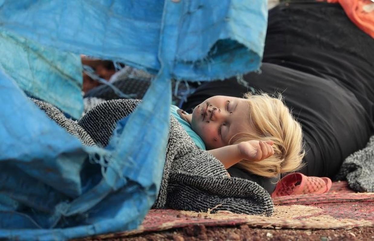 Anh an tuong tuan: Tan cung khon kho tre em Syria trong thoi chien-Hinh-4